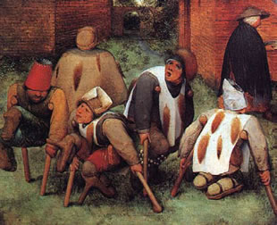 Medieval amputees.